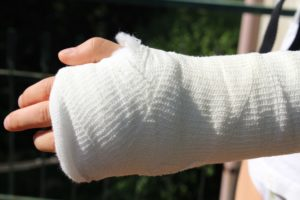 The Five Most Common Auto Accident Injuries
